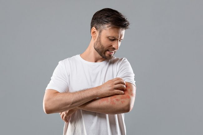 10 Psoriasis Triggers to Avoid