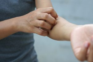 7 Most Common Psoriasis Types